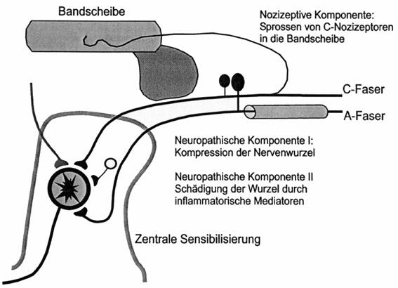 Prof. Dr. Dr. Thomas R. Tölle: Therapeutische Konsequenzen: Mono – Poly oder Stratego? Wie neuropathisch sind chronische Schmerzen?