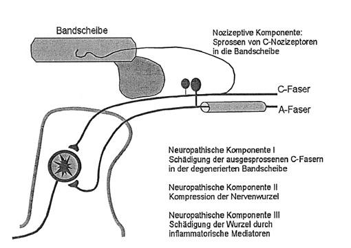 Prof. Dr. Ralf Baron: Neuropathie im Rücken ‑ Entstehung und Erkennung