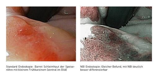 Prof. Dr. Horst Neuhaus: Krebsfrühstadien im Magen-Darm-Trakt: Endoskopische Therapie statt Operation