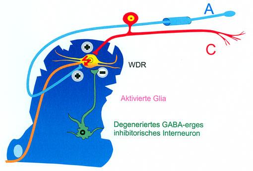 Prof. Dr. Ralf Baron: Zentrale neuropathische Schmerzen