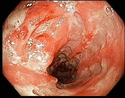 Adalimumab jetzt auch für Morbus Crohn zugelassen