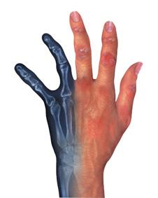EULAR 2007: TEMPO 4-Daten belegen Wirksamkeit Etanercept plus Methotrexat bringen die Progression der rheumatoiden Arthritis zum Stillstand