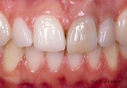 Prof. Dr. med. dent. Daniel Edelhoff: Bleichen, kaschieren, schmücken – die Zahnarztpraxis als Schönheitssalon?