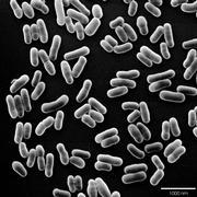 Deutsches Institut für Ernährungsforschung: Bifidobakterien helfen Frühgeborenen besser zu gedeihen
