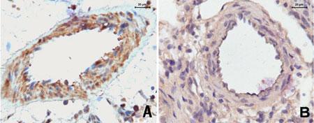 Suche nach einem Therapieansatz gegen Lungenhochdruck: Wissenschaftler identifizieren einen Rezeptor, der an der Entstehung von Lungenhochdruck beteiligt ist