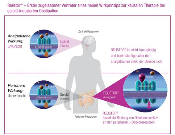 Erste kausale Therapie der Opioid-induzierten Obstipation – Erster selektiver m-Opioid-Rezeptor-Antagonist Methylnaltrexon (Relistor®) erhält Zulassung für Europa