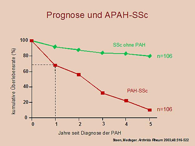 PD Dr. med. Christian Opitz: Therapiekonzepte der pulmonal arteriellen Hypertonie bei Kollagenosen (APAH-SSc)