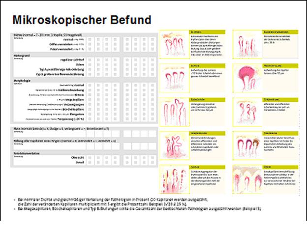 Dr. med. Oliver Sander: Kapillarmikroskopie in der Diagnostik der systemischen Sklerose