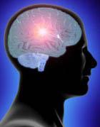 Das Schlaganfallrisiko ist unter Neuroleptika erhöht – bei atypischen noch höher als bei typischen