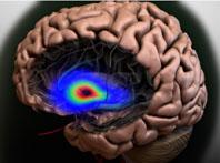 26. Arbeitstagung für Neurologische Intensiv- und Notfallmedizin: ECASS 3-Studie: Thrombolyse mit Alteplase auch nach drei Stunden noch wirksam und sicher