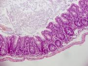 Hoffnung bei chronischen Darmentzündungen: Neuer Wirkmechanismus probiotischer Bakterien entdeckt