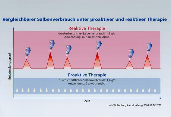 Mit proaktiver Therapie Ekzemschübe bei atopischer Dermatitis verhindern