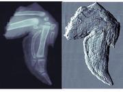 Hochaufgelöste Bilder verbessern Brustkrebsdiagnose – Exzellenzcluster präsentiert Forschungsergebnisse auf World of Photonics