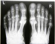 Etanercept (Enbrel®) bei früher Rheumatoider Arthritis: Komplette Remission ist realistisches Therapieziel