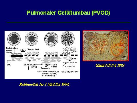 Prof. Dr. med. J. Breuer: Pathophysiologie der PAH im Kindesalter