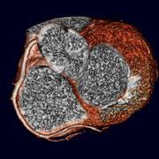 Meta-Analyse bestätigt: Computertomografie ist genauer als die Magnetresonanztomografie in der Diagnostik der koronaren Herzkrank