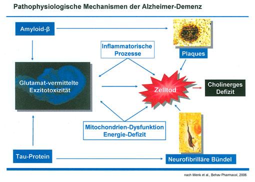 Dr. med. Ingo Füsgen: Frühdiagnose Alzheimer Demenz – Konsequenzen für Patient und Versorgung