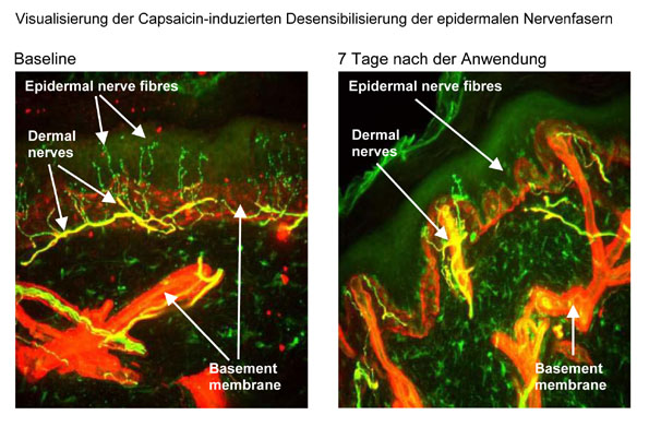 QUTENZA™ (kutanes Pflaster mit 8% Capsaicin) – eine neue Therapieoption zur Behandlung von peripherem neuropathischem Schmerz