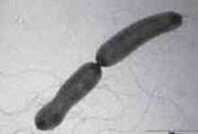 EHEC-Infektionen können für Kinder schwerwiegende Folgen haben
