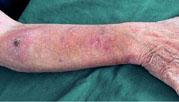 Multiple aktinische Keratosen (Carcinomata in situ der Haut) nach langjähriger topischer Anwendung von Tacrolimus (Protopic®)