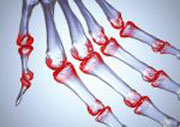 EU-Kommission erteilt Zulassung für RoACTEMRA® zur Behandlung der systemischen juvenilen idiopathischen Arthritis