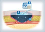 Nationale Studie zur Vakuumtherapie von chronischen Wunden gestartet