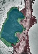 Wie metastasierende Krebszellen in Organe eindringen