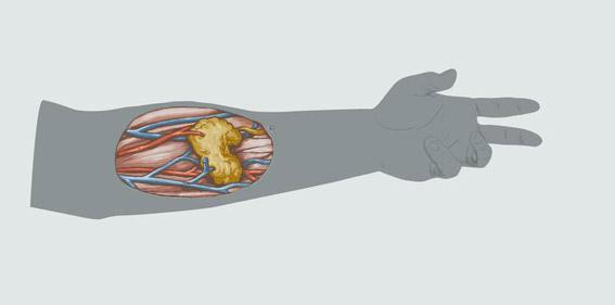 Neue Operationstechnik: Speicheldrüsentransplantation bei Tumorpatienten