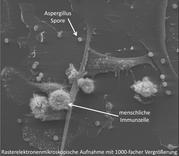 Pilzinfektionen: Probleme bei der Diagnostik?