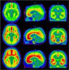 Sucht: Folgen von Zigaretten-Rauchen im Gehirn sind langanhaltend