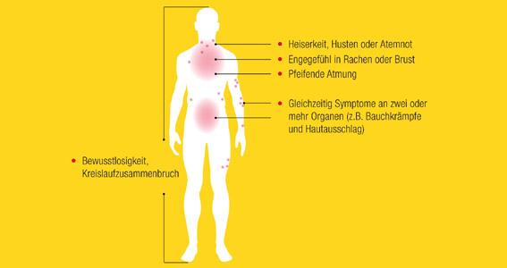 Anaphylaktischer Schock: Im Notfall Mittel der Wahl: Adrenalin-Autoinjektion