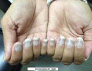 Retigabin bei Epilepsie: Langzeit-Nebenwirkungen mit Verfärbungen der Finger und Pigmentstörungen der Retina erfordern Kontrolluntersuchungen