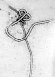 Ebola: Madrider Pflegehelferin mit Ebolavirus infiziert – Ausbruch des Marburg-Fiebers in Uganda