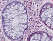 Tod nach Knochenmarkstransplantation: Forscher enthüllen Ursachen