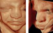 Was Gesichtsausdrücke des Ungeborenen im Ultraschall verraten