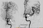 Schlaganfall-Therapie: Zeitfenster für neue Kathetertechnik oft größer als gedacht