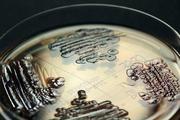 Mitbringsel: Wie kommen die gefürchteten multiresistenten Bakterien ins Krankenhaus?