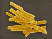 RKI: Schnittstelle für eine erfolgreiche Tuberkulosekontrolle