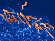 Infektionen mit Helicobacter pylori beeinflussen die mikrobielle Vielfalt in Mund und Dünndarm: Helicobacter – Der Herrscher im oberen Verdauungstrakt