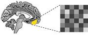Neue Erkenntnisse in der Resilienzforschung: Neuer Ansatz zur Verbesserung der Angsttherapie entdeckt