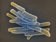 RKI: Bericht zur Tuberkulose in Deutschland