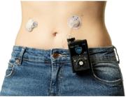 Insulinpumpen-Technik mit Verstand: Moderne Diabetes-Therapie passt sich dem Leben der Patienten an