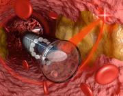 Kleinstes 3D-gedrucktes Miniatur-Endoskop der Welt liefert höchst genaue Bilder aus dem Inneren von Adern